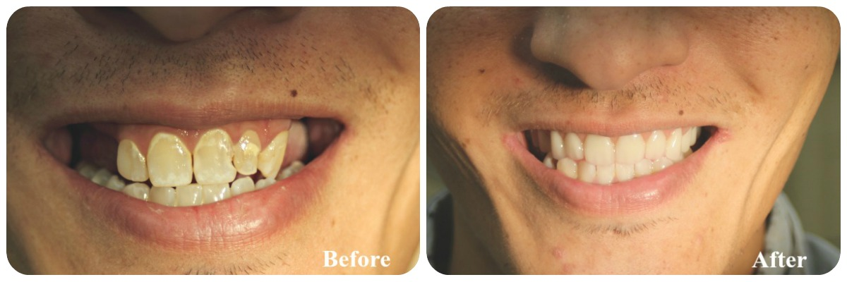 cosmeticdentures2beforeafter
