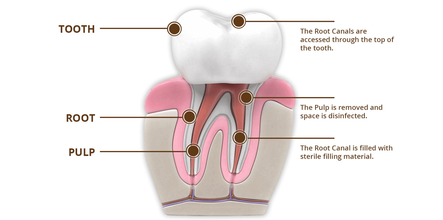 Root Canal Treatment East Peoria, IL