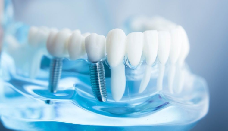 Significance of Dental Implant in Elderly Patients_2