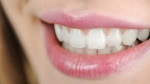 The difference between a tooth whitening and a descaling